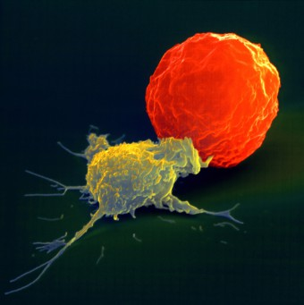 NK_Cell_PRinc_Scaled