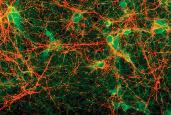 Rat-cortical-cells-21days-PGP